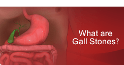 What are Gall Stones - Mr.Andrew Jenkinson - GALL BLADDER SURGERY London